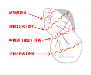 舟状骨骨折ー手の舟状骨の血管分布|大阪市住吉区長居藤田鍼灸整骨院