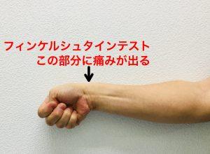 ドケルバン病フィンケルシュタインテスト|藤田鍼灸整骨院