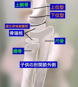 上腕骨顆上骨折の分類(側面)大阪市住吉区長居藤田鍼灸整骨院
