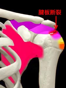 腱板断裂|大阪市住吉区長居藤田鍼灸整骨院