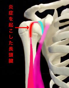 上腕二頭筋長頭腱炎|大阪市住吉区長居藤田鍼灸整骨院