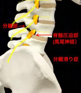 腰椎分離すべり症による脊髄の圧迫|大阪市住吉区長居藤田鍼灸整骨院