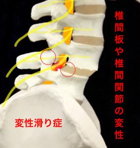 腰椎変性すべり症による脊髄の圧迫|大阪市住吉区長居藤田鍼灸整骨院