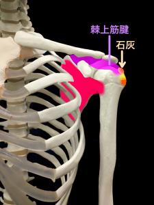 石灰沈着性腱板炎の急性期型|大阪市住吉区長居藤田鍼灸整骨院