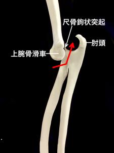 肘関節後方脱臼|大阪市住吉区長居藤田鍼灸整骨院