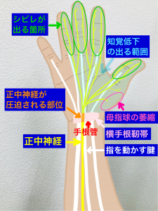 手根管症候群の正中神経圧迫部位(CTS)|大阪市住吉区長居藤田鍼灸整骨院