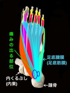 足底腱膜炎(足底筋膜炎)の好発部位|住吉区長居藤田鍼灸整骨院