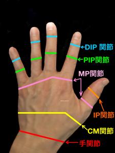手指の関節、DIP,PIP,MP,CM|大阪市住吉区長居藤田鍼灸整骨院