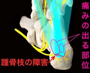 内側踵骨枝障害による足底腱膜炎(足底筋膜炎)|住吉区長居藤田鍼灸整骨院
