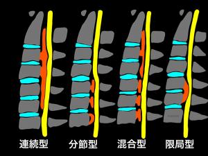 後縦靭帯骨化症の分類、連続型、分節型、混合型、限局型|大阪市住吉区長居藤田鍼灸整骨院