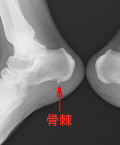 踵骨棘レントゲン像|藤田鍼灸整骨院