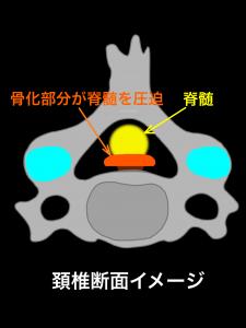 後縦靭帯が脊髄を圧迫|藤田鍼灸整骨院