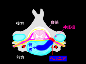 椎間板ヘルニアが神経根を圧迫|大阪市住吉区長居藤田鍼灸整骨院