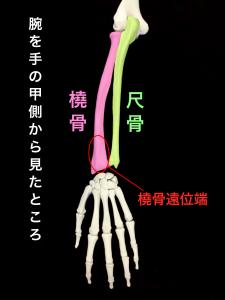 前腕の骨-橈骨と尺骨、橈骨遠位端骨折発生部位|大阪市住吉区長居藤田鍼灸整骨院
