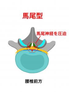 腰部脊柱管狭窄症馬尾型|大阪市住吉区長居藤田鍼灸整骨院