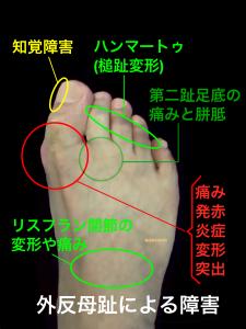 外反母趾|知覚障害、ハンマートゥ、槌趾変形、胼胝第二趾足底の痛み、リスフラン関節の障害、MTP関節の障害|住吉区長居藤田鍼灸整骨院