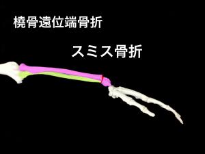 スミス骨折(橈骨遠位端骨折)|大阪市住吉区長居藤田鍼灸整骨院