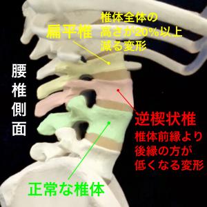 圧迫骨折|扁平椎と逆楔状椎|大阪市住吉区長居藤田鍼灸整骨院