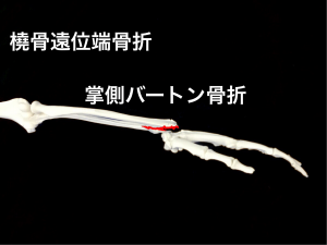 掌側バートン骨折(橈骨遠位端骨折)|大阪市住吉区長居藤田鍼灸整骨院