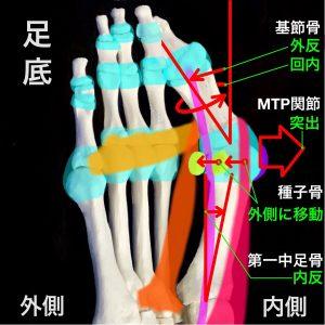 外反母趾骨軸の変化|基節骨外反、MTP関節突出、種子骨移動、第一中足骨内反|住吉区長居藤田鍼灸整骨院