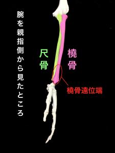前腕の骨―橈骨と尺骨、橈骨遠位端骨折発生部位|大阪市住吉区長居藤田鍼灸整骨院