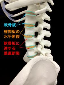 椎間板の水平裂や垂直裂などによる変性|大阪市住吉区長居藤田鍼灸整骨院
