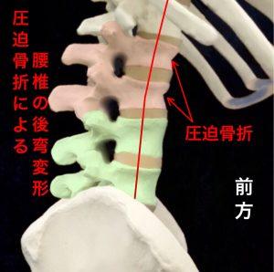 圧迫骨折による腰椎の後弯変形|住吉区長居藤田鍼灸整骨院