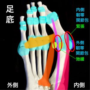 外反母趾靭帯と関節包|住吉区長居藤田鍼灸整骨院