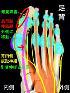 外反母趾による背内側皮趾神経障害・知覚低下と長母趾伸筋腱|大阪市住吉区長居藤田鍼灸整骨院