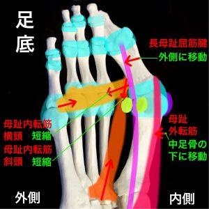 外反母趾|長母趾屈筋腱、母趾外転筋、母趾内転筋|住吉区長居藤田鍼灸整骨院