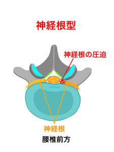 腰部脊柱管狭窄症神経根型|大阪市住吉区長居藤田鍼灸整骨院