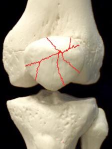膝蓋骨骨折―転移のない粉砕骨折|大阪市住吉区長居藤田鍼灸整骨