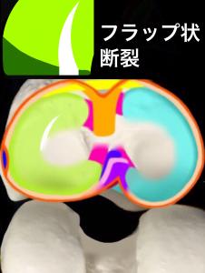 半月板損傷分類ーフラップ状断裂|大阪市住吉区長居藤田鍼灸整骨院