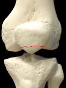膝蓋骨骨折ー転移のない横骨折|大阪市住吉区長居藤田鍼灸整骨院