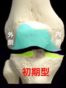 の分類・初期型|大阪市住吉区長居藤田鍼灸整骨院