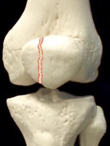 膝蓋骨骨折―縦骨折|大阪市住吉区長居藤田鍼灸整骨院