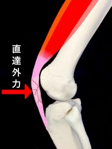 直達外力による膝蓋骨骨折|大阪市住吉区長居藤田鍼灸整骨院