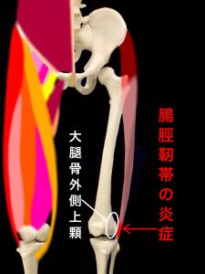 腸脛靭帯炎|大阪市住吉長居藤田鍼灸整骨院