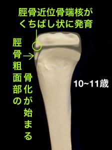 オスグッドシュラッター病脛骨粗面骨化核と骨端核の変化|住吉区長居藤田鍼灸整骨院