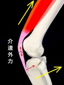 介達外力による膝蓋骨骨折|大阪市住吉区長居藤田鍼灸整骨院