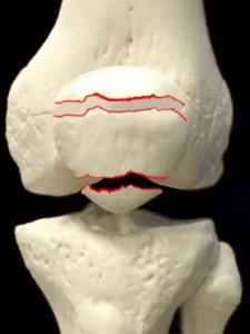 膝蓋骨骨折ー上端骨折または下端骨折|大阪市住吉区長居藤田鍼灸整骨院