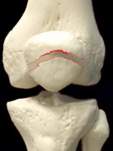 膝蓋骨骨折ー転移のある横骨折|大阪市住吉区長居藤田鍼灸整骨院