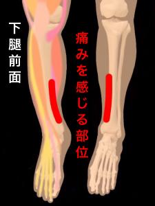 シンスプリント疼痛部位|住吉区長居藤田鍼灸整骨院