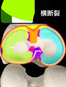 半月板損傷分類ー横断裂|大阪市住吉区長居藤田鍼灸整骨院