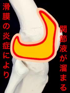 関節軟骨のすり減りにより、滑膜が炎症を起こすと関節液が多くなる|大阪市住吉区長居藤田鍼灸整骨院