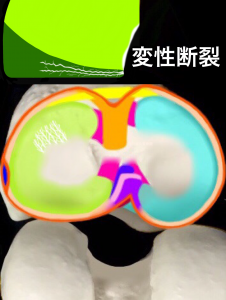 半月板損傷変性断裂|大阪市住吉区長居藤田鍼灸整骨院