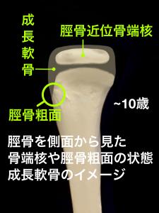 オスグッドシュラッター病・成長軟骨と骨端核、脛骨粗面の様子|住吉区長居藤田鍼灸整骨院