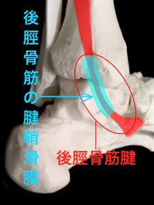 後脛骨筋の腱鞘滑膜|大阪市住吉区長居藤田鍼灸整骨院