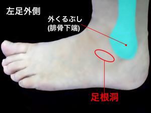 足根洞症候群|住吉区長居藤田鍼灸整骨院