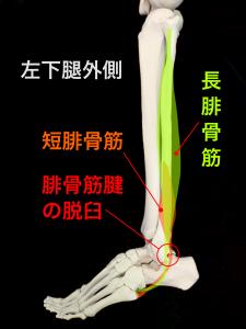 腓骨筋腱脱臼(主に長腓骨筋腱)|住吉区長居藤田鍼灸整骨院